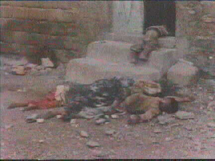Victims of chemical  weapons in Halabja 16/3/1998
